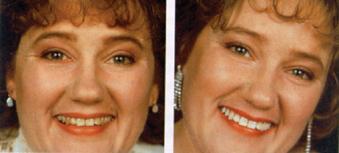 Bleichen von Zähnen