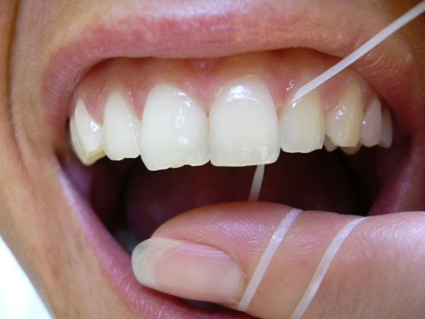Anwendung von Zahnseide